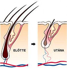 Lassabb növekedés, gyengébb gyökerek, egyre vékonyabb, halványabb szőrszálak